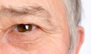 علائم خشکی چشم و روش های درمان آن