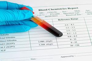 با یک آزمایش خون ساده کبد را چک کنید