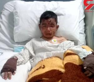 محمد طاها 9 ساله سوخت تا 4 کودک زنده بمانند