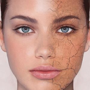 اینفوگرافی / روشهای خانگی برای کاهش خشکی پوست