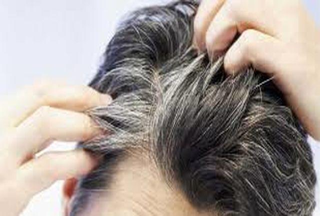 آیا موهای سفید میتوانند دوباره سیاه شوند؟/ بررسی عوامل عجیبی که موهایتان را سفید می کند