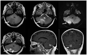 محققان به روش جدیدی برای توقف تکثیر سلولهای تومور مغزی دست یافتند