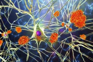 روش جدید درمان آلزایمر با نور و اکسیژن