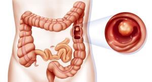 التهاب روده، ارمغان مصرف فرآورده های حیوانی و فست فود