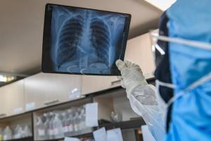 کرونا/ تاثیر بلندمدت ویروس کرونا بر ریه چیست؟