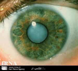 بیماری بدون علامت «آب سیاه» را جدی بگیرید