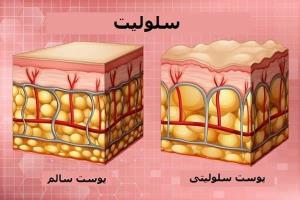 سلولیت چیست و چگونه می توان آن را درمان کرد؟