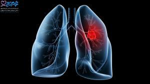 اینفوگرافی/دلایل ابتلا به سرطان ریه؛ راه های پیشگیری از ابتلا