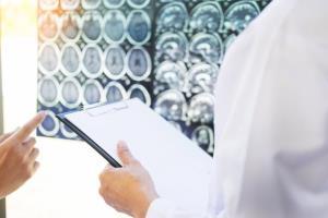حتی یک ضربه مغزی خفیف هم خطر سکته را به همراه دارد