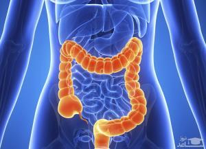 اینفوگرافی/ پنج خوردنی مفید برای پیشگیری از سرطان روده بزرگ