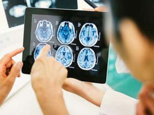 چه عواملی می توانند باعث ایجاد لخته خون در مغز بشوند؟