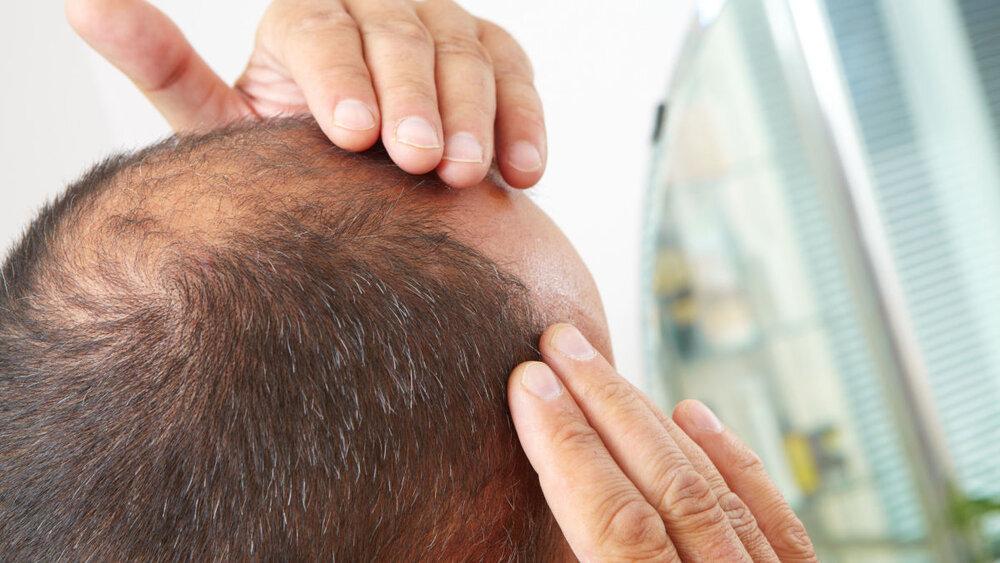 راهکار طب سنتی برای درمان ریزش مو