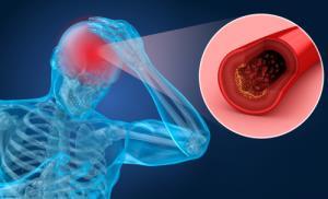 چرا خون در مغز لخته می شود؟