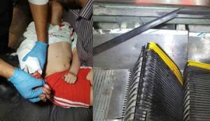 گیر کردن دست دختر بچه مهابادی در پله برقی