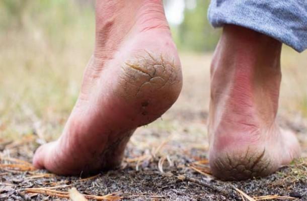 کمبود ویتامین B3 باعث ترک و خشکی پا می شود