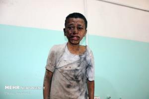 ۷ کشته و زخمی در حمله توپخانه ای ائتلاف سعودی به یمن