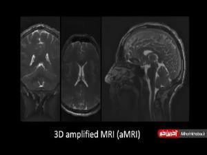در این کلیپ حرکات مغز را مشاهده کنید