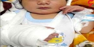 ماجرای تولد نوزاد خرمشهری با دست شکسته