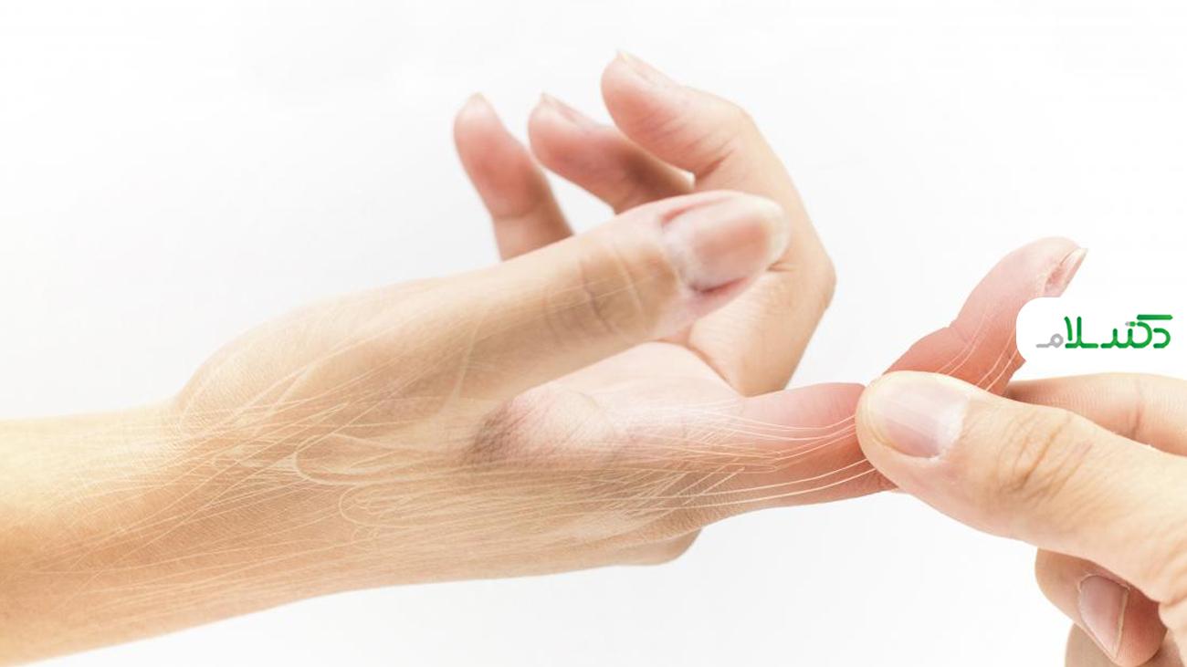 علت تورم انگشتان دست چیست؟
