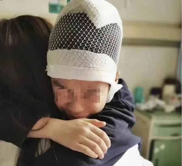 تنبیه وحشتناک معلمی که پوست سر و جمجمه کودک را از هم جدا کرد!
