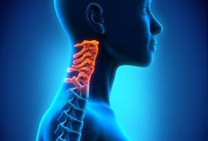 رایجترین علت آرتروز گردن و درمان آن