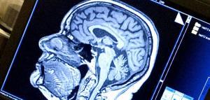 کاهش ماده خاکستری مغز در اثر ابتلا به کووید ۱۹