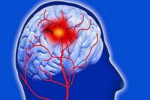 پنج راه اصلی پیشگیری از سکته مغزی را بشناسید