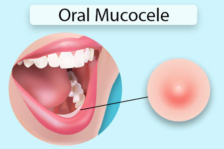 موکوسل دهانی چیست ؟