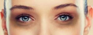 علت حلقههای تیره پای چشم چیست؟