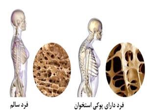 چگونه لاغر شدن ما را به پوکی استخوان مبتلا میکند؟