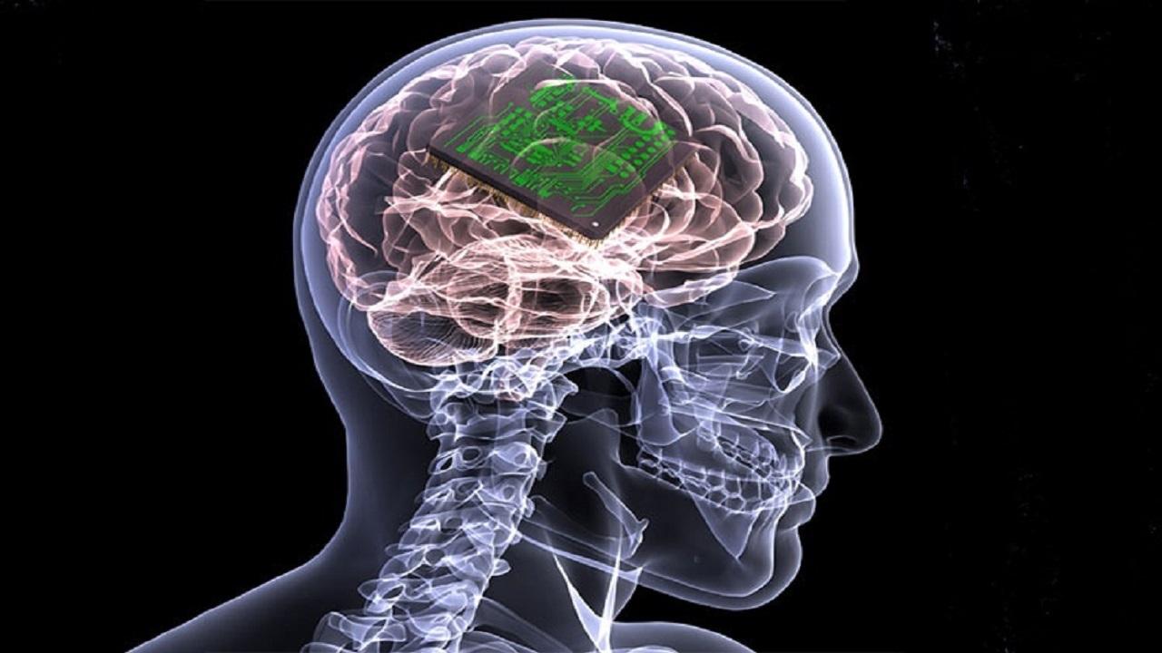 امکان بازگشت بینایی برای نابینایان با ایمپلنت در مغز