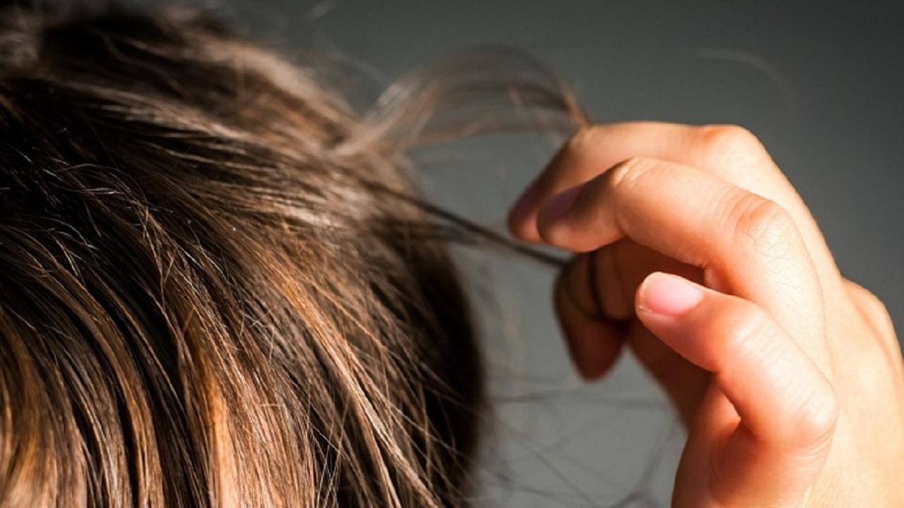 بیرون کشیدن ۳ کیلو مو از معده بیمار