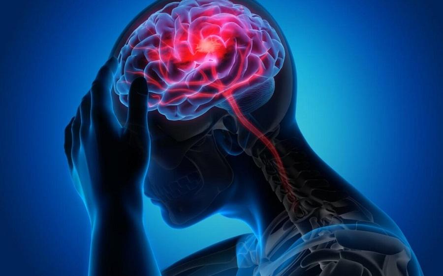 شیوع یک بیماری مغزی ناشناخته در کانادا با بیش از ۵۰ قربانی