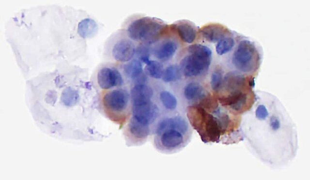 تشخیص سرطان مثانه با یک آزمایش غربالگری جدید