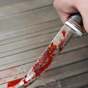 20 ضربه چاقو برای سرقت از عکاس جوان