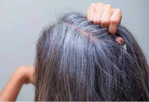 آیا مو یک شبه سفید می شود؟