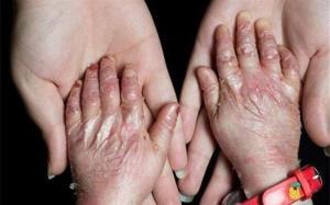 بیماری خاص چیست و به چه بیماریهایی اطلاق میشود؟