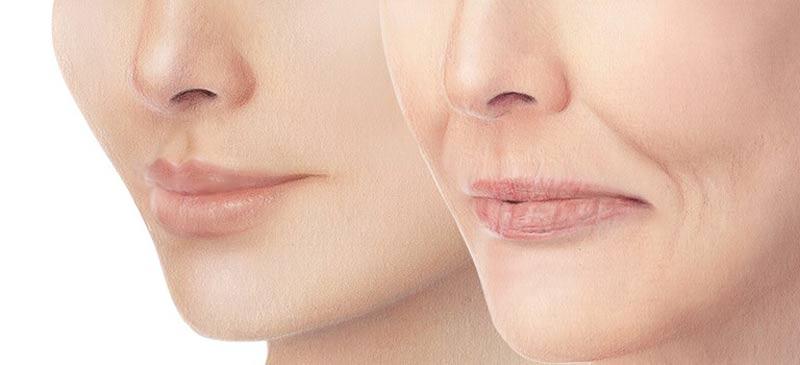 راهی بسیار ساده برای رفع لاغری صورت