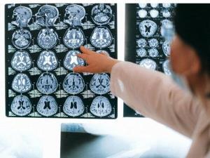 آیا کووید ۱۹ با بیماریهای شناختی از جمله آلزایمر مرتبط است؟