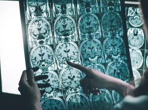 درمان جدیدی که میتواند به توقف آلزایمر کمک کند