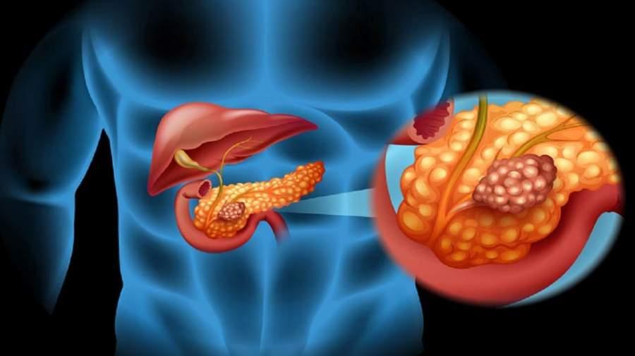 سرطان پانکراس در بدن شما ریشه دوانده اگر این نشانهها را دارید!