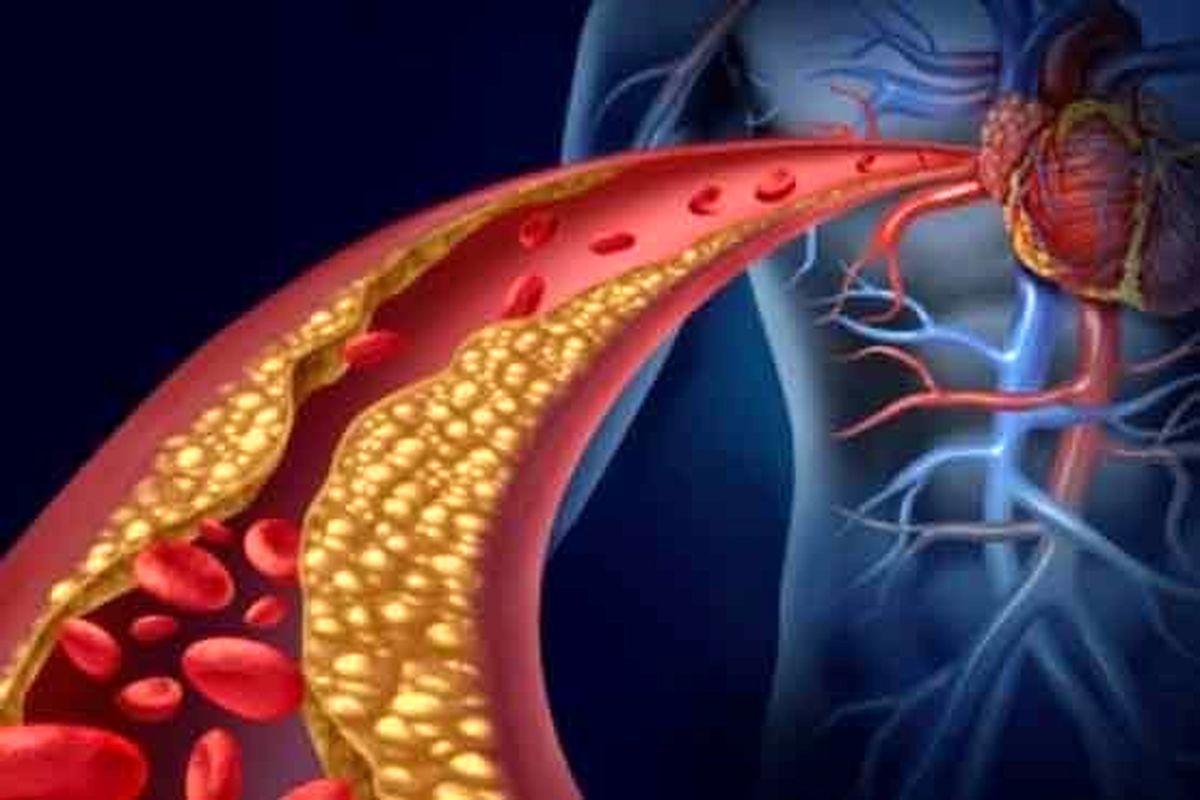 کرونا/ دلیل لخته شدن خون در بیماران کرونا چیست؟