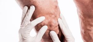 رگهای واریسی؛ علتها، درمان و پیشگیری