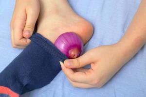 درمان سریع میخچه با قرار دادن پیاز کف پا داخل جوراب