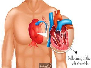 دلیل بروز سندرم قلب شکسته چیست؟