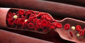 برداشتن لخته خون از رگ با آنژیوگرافی