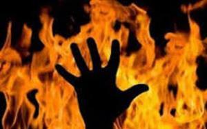 زن جوان رقیب عشقیاش را آتش زد