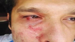 کارشناس بهداشت تنگستان به علت تذکر کرونایی مورد ضربوشتم قرار گرفت