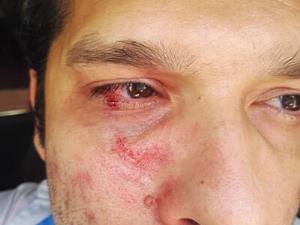 کتک زدن کارشناس بهداشت در تنگستان