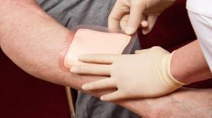 زخم بستر؛ از دلایل شیوع تا راه های درمان